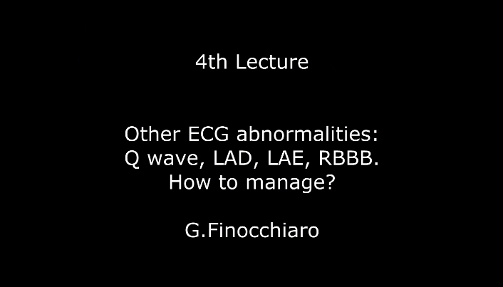 Other ECG abnormalities: Q wave, LAD, LAE, RBBB. How to manage? G.Finocchiaro